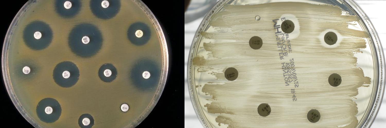 Новая стратегия в борьбе с бактериями, устойчивыми к антибиотикам