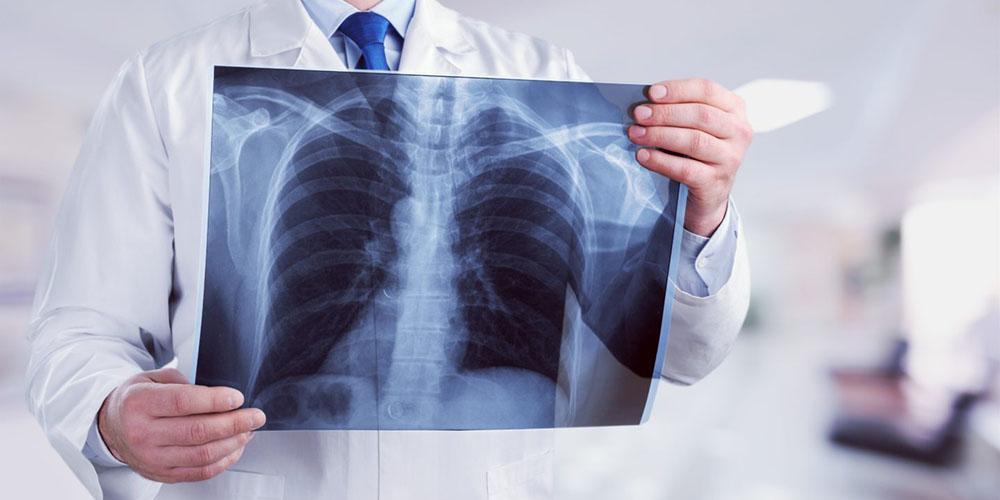 В Украине зафиксирована вспышка опасной болезни, умирает множество людей от пневмонии