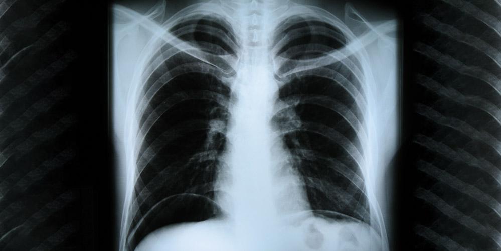 Атипова пневмонія. Що треба знати, аби вчасно розгледіти