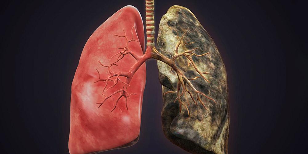 Легкие заядлого курильщика могут полностью восстанавливаться - исследование