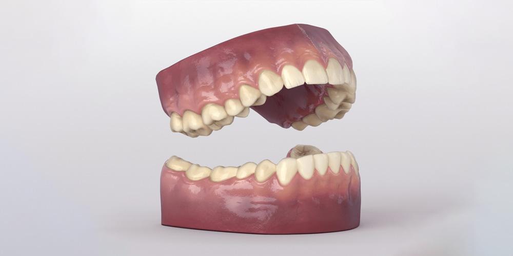 Ученые обнаружили, что зубы, подобно кольцам деревьев, «записывают» все происходящее в жизни человека