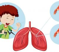 Обструктивный синдром у детей: причины, симптомы и профилактика