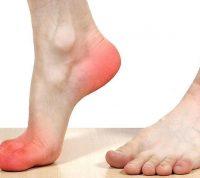 Атеросклероз помолодел: он стремительно развивается у людей среднего возраста