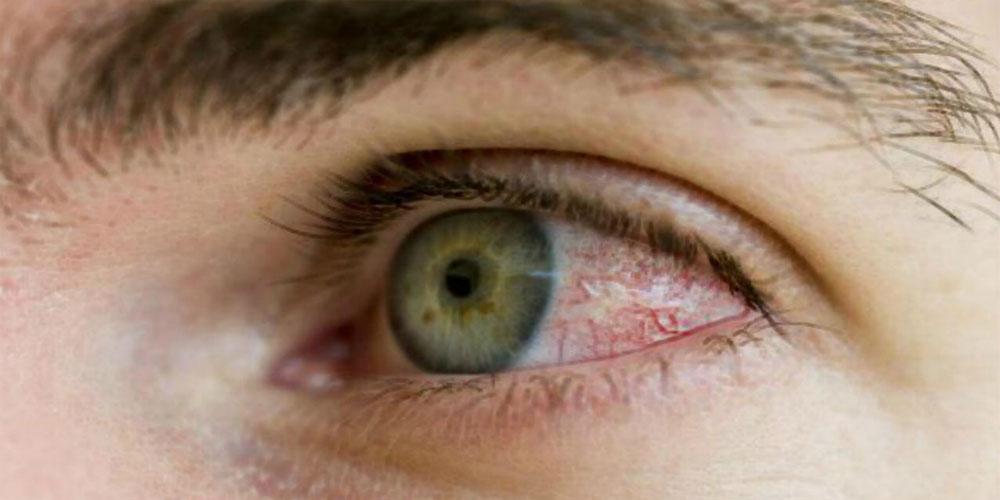 Коронавирус выявлен в слезной жидкости и конъюнктиве глаза