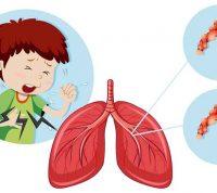 Обструктивний синдром у дітей: причини, симптоми, профілактика