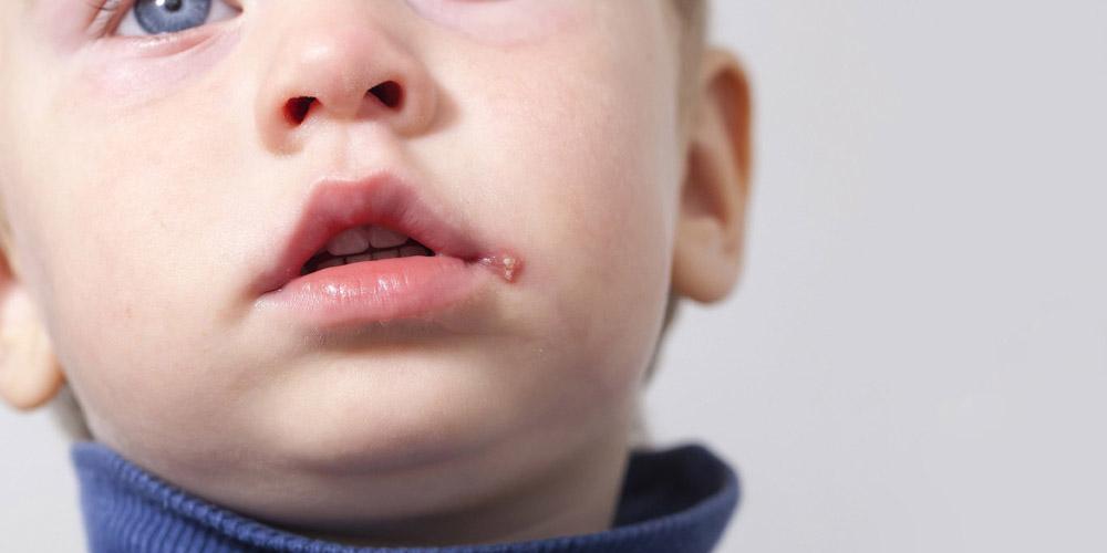 Герпес у дитини: чим лікувати застуду на губах