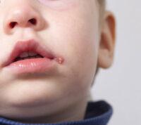 Герпес у ребенка: чем лечить простуду на губах