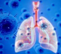 Пневмония при коронавирусе: что важно знать