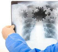 Как распознать первые симптомы вирусных инфекций дыхательных путей