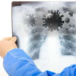 Як розпізнати перші симптоми вірусних інфекцій дихальних шляхів