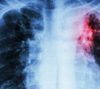 Выявили два новых штамма туберкулеза: чем они опасны