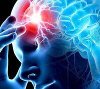 Ризик інсульту в 8 разів ймовірніший при COVID, ніж при грипі