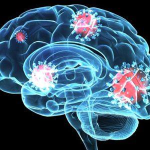 Ученые заявляют, что коронавирус может навредить мозгу
