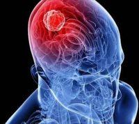 Ученые определили онкоген, вызывающий рак мозга