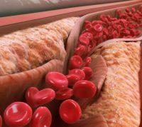 Чтобы снизить уровень холестерина нужно есть меньше хлеба, картофеля и сладостей