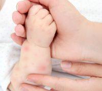 Атопический марш чаще встречается у детей, рожденных осенью