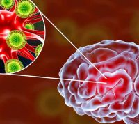 Вирусный менингит и энцефалит: как предотвратить заболевания
