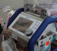 Эффективнее, чем ИВЛ: эксперты заявляют о важности аппаратов ЭКМО