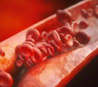 Оказалось, люди умирали от атеросклероза более 3 тысяч лет назад