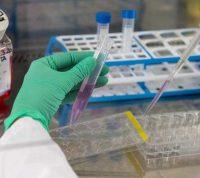 У мужчин с тяжелыми случаями COVID-19, может наблюдаться снижение репродуктивной функции
