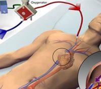 Лечение аппаратом жизнеобеспечения спасает жизни