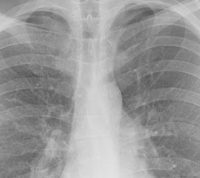Важные факты о пневмонии: помогает ли вакцинация и антибиотики и в чем отличие пневмонии при COVID-19