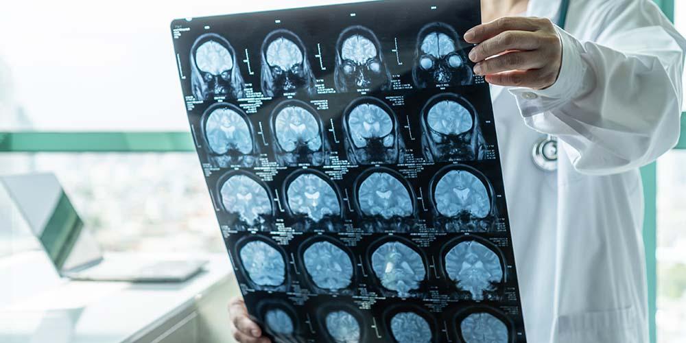 Слюна может быть использована для диагностики сотрясения мозга