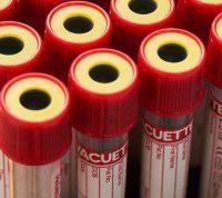 У детей, которые не были инфицированы коронавирусом, обнаружили антитела