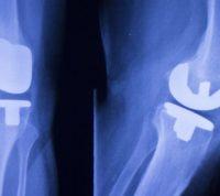 Использование имплантатов с антибактериальным покрытием обещает значительно снизить риск заражения