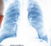Грип у хворих з хронічними обструктивними захворюваннями легень потребує пильної уваги
