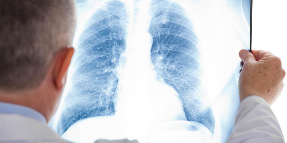 Як перебігає грип у хворих з хронічними обструктивними захворюваннями легень