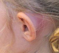 Гострий мастоїдит у дітей: як вберегти від ускладнень ГРВІ