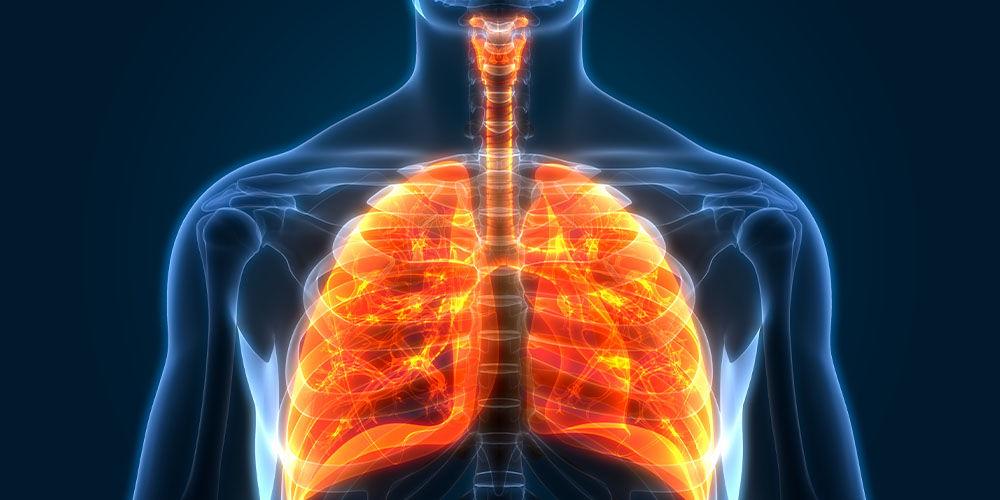 Грипозна пневмонія у дорослих