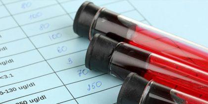 Обязательное тестирование на грипп ускоряет процесс диагностики и леченияи
