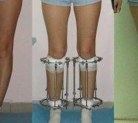 Каждый год сотни людей делают болезненную операцию по вытягиванию ног, чтобы стать на несколько сантиметров выше