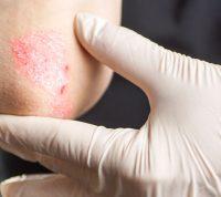 Псориазом чаще болеют люди, находящиеся в плохой физической форме