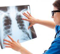 Новое исследование обнаружило отличие пневмонии при COVID-19 от других известных видов пневмоний