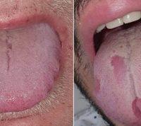 «Ковидный язык» – еще один возможный симптом коронавируса