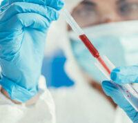«Британский» штамм оказался на 64% смертоноснее более «старых» вариантов коронавируса