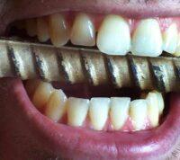 Растущая зависимость от смартфона может стать причиной скрежета зубов