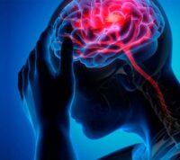 Ученые выяснили, что инсульт у молодых людей имеет те же причины, что и у пожилых