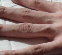 Диагностировать муковисцидоз теперь можно с помощью наклейки на коже