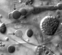 В Индии у пациентов с COVID-19 встречается опасный грибок