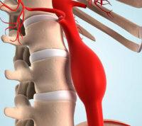 Ученые рассказали, как можно заподозрить у себя аневризму аорты