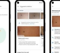 Новое приложение Google поможет распознать кожные заболевания