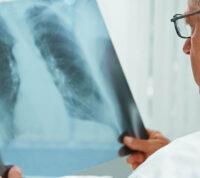 Разработан тест, прогнозирующий детский туберкулез
