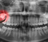Ученые заявили о преимуществе удаления зубов мудрости