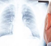 Ученым удалось сократить курс лечения туберкулеза