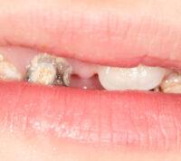 Определили очередные проблемы, которые возникают на фоне плохих зубов