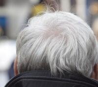 Возраст – главное причина генетических мутаций рака кожи